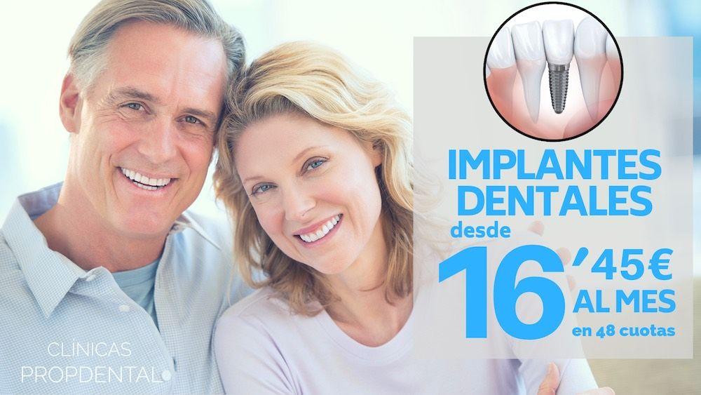 implantes dentales 48 cuotas