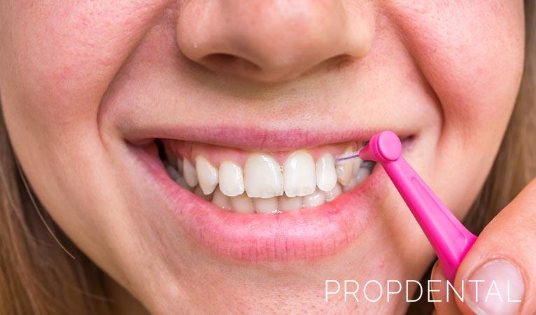 La importancia de una higiene interproximal diaria