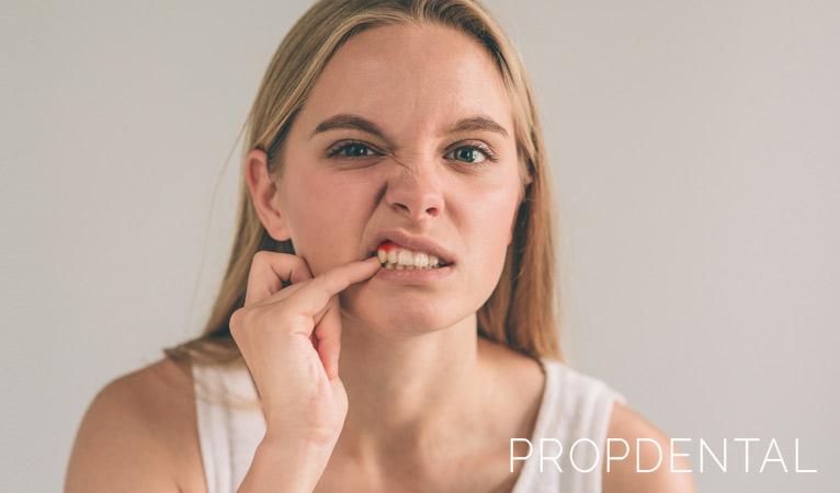 Me sangran las encías, ¿Tengo gingivitis?