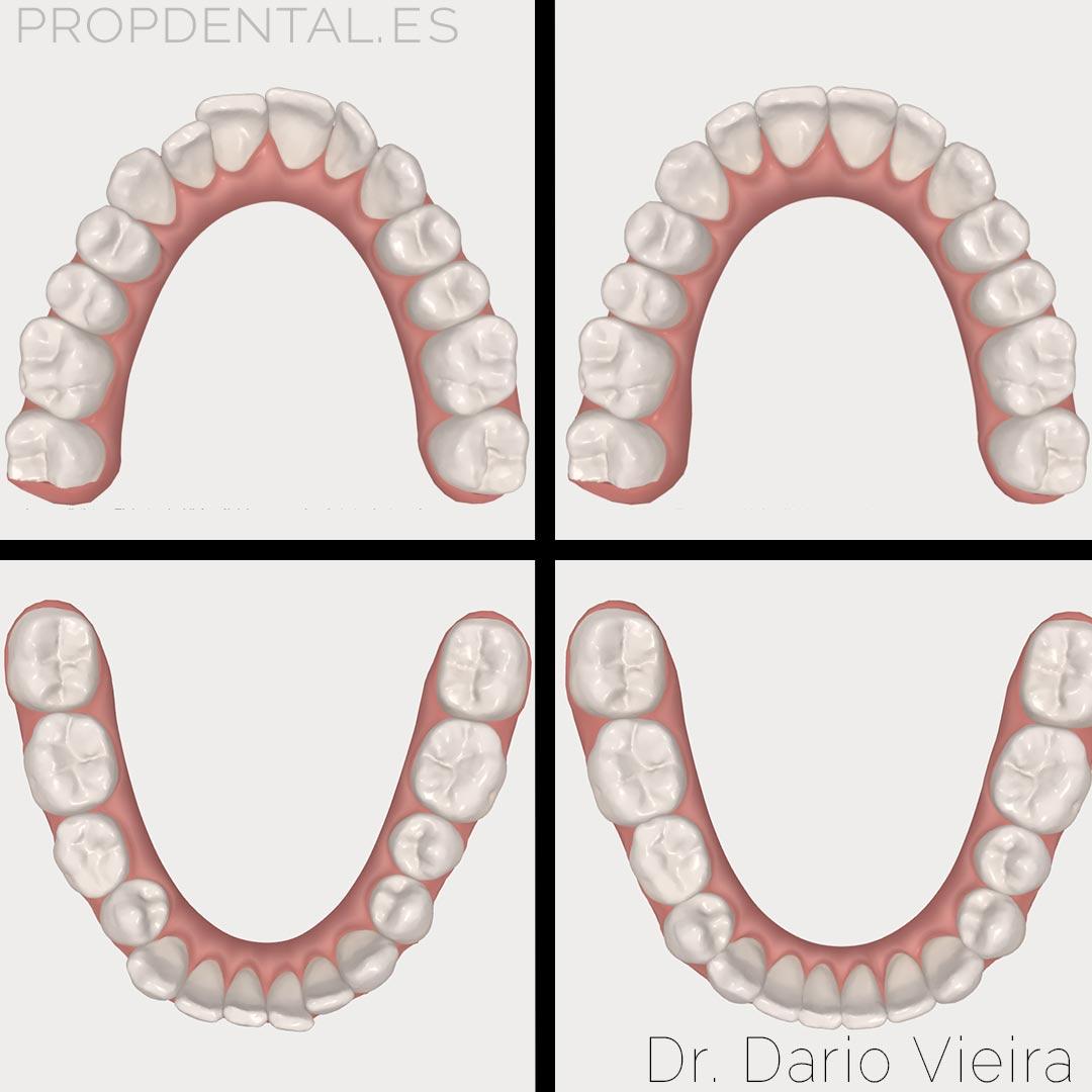 ortodoncia caso 18 meses clincheck arcadas