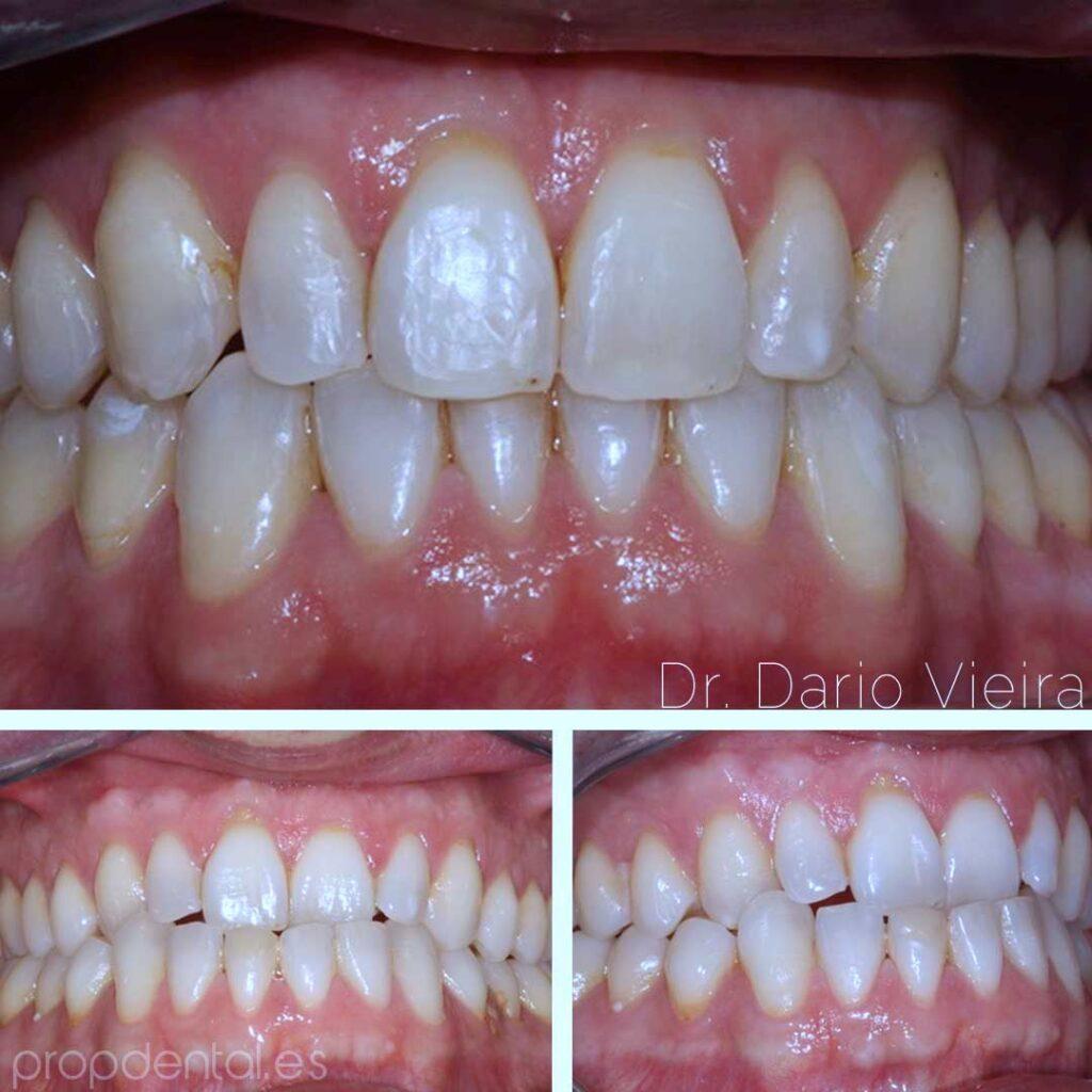 ortodoncia-centrado-lienas-medias