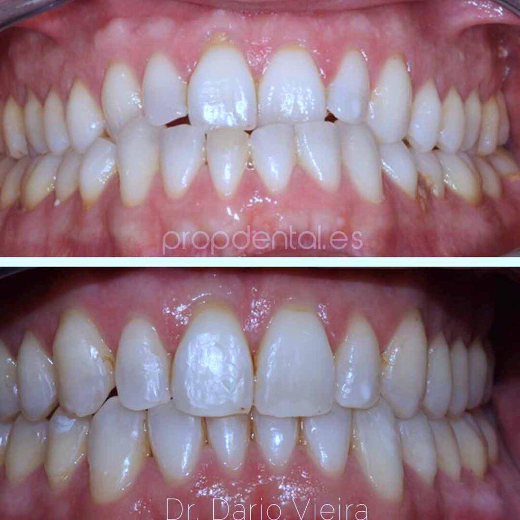 ortodoncia-correción-sobremordida