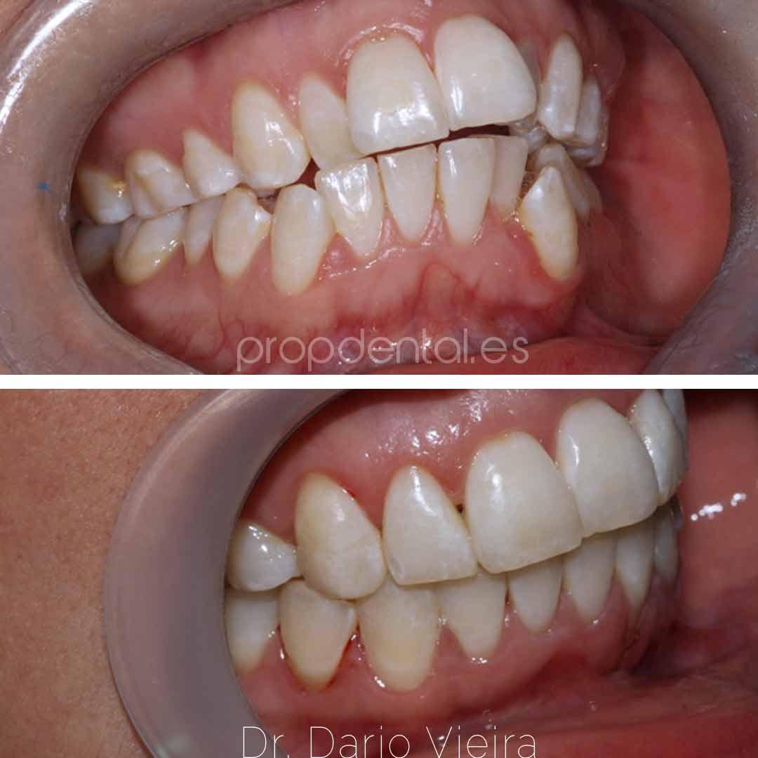 ortodoncia discrepancia severa