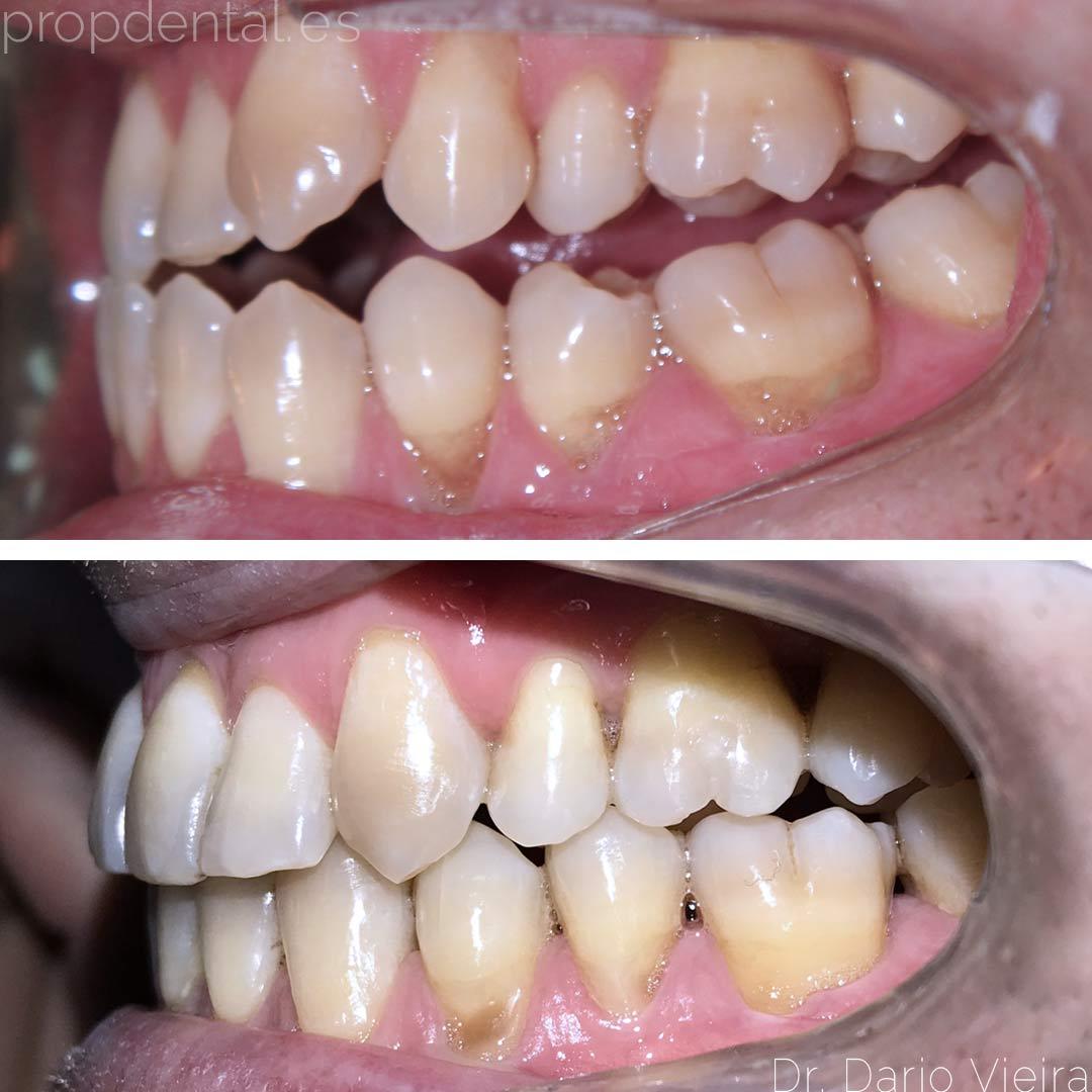 ortodoncia mejorar mordida