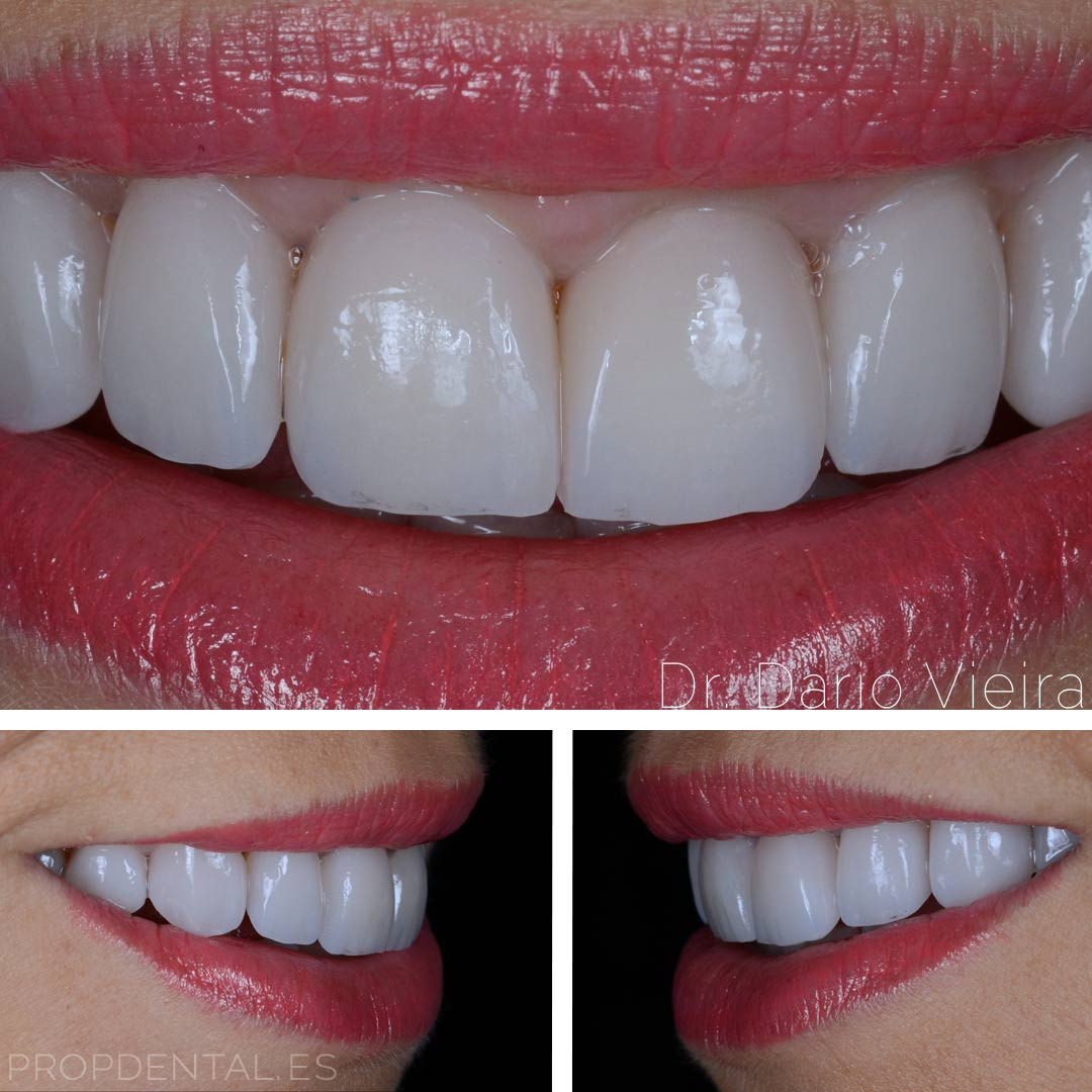 translucidez bores incisales