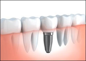 tratamientos-implante-dental