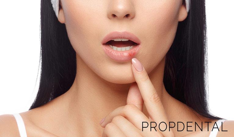 ¿Qué es un herpes labial y cómo curarlo?