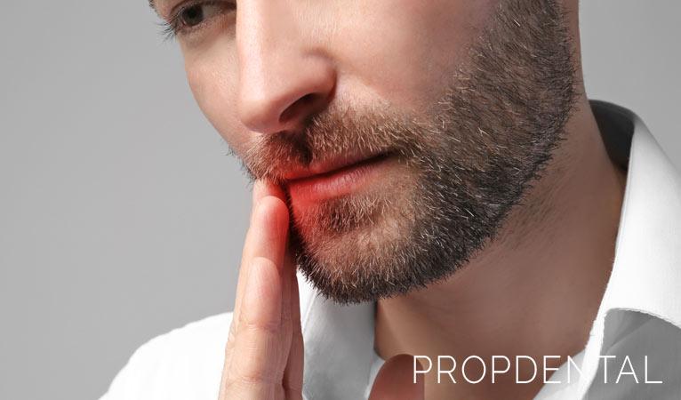 Infección de muela: ¿Qué complicaciones tiene?