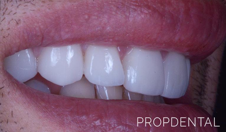 Odontología estética: una sonrisa perfecta es posible