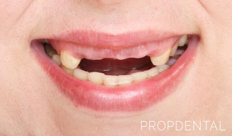 5 consecuencias de la falta de dientes