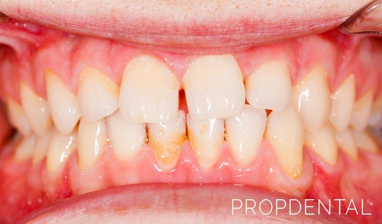 Alteraciones estéticas que afectan tu sonrisa