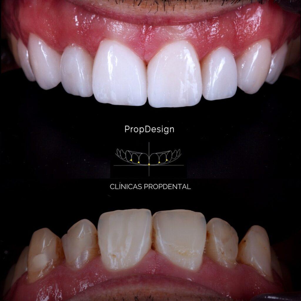carillas dentales de porcelana badalona
