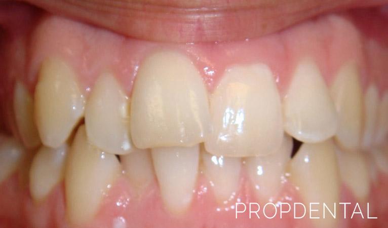 ¿Cómo solucionar la falta de espacio entre dientes?