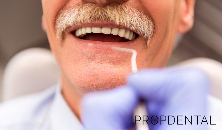 Cuidados tras colocar un implante dental