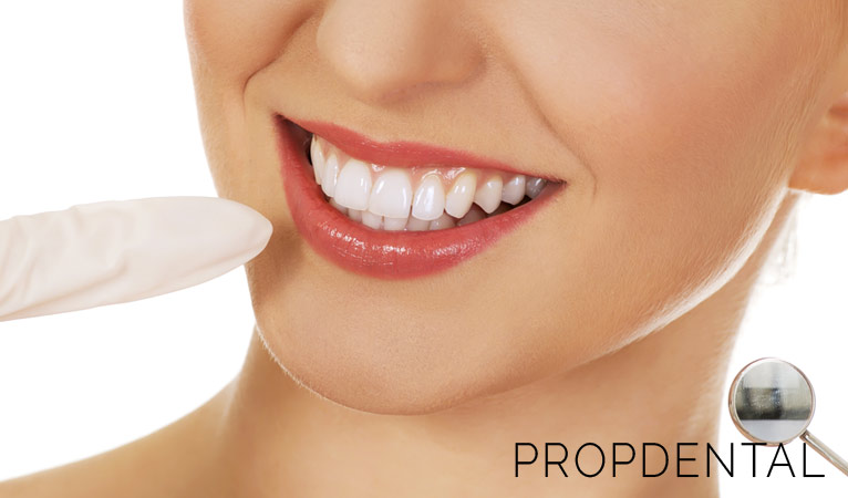 Carillas dentales: ¿Qué ventajas ofrecen?