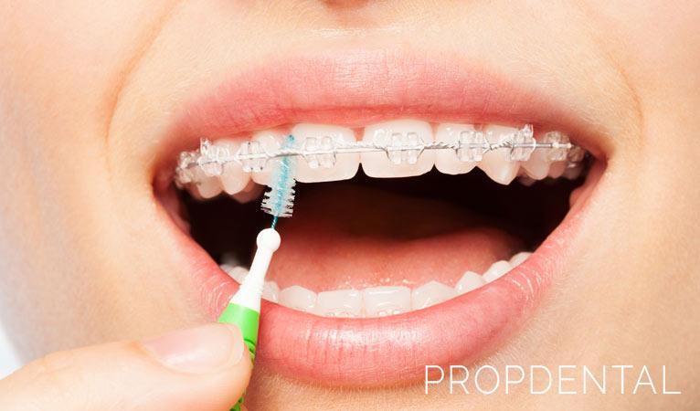 Ortodoncia: claves para una buena limpieza diaria