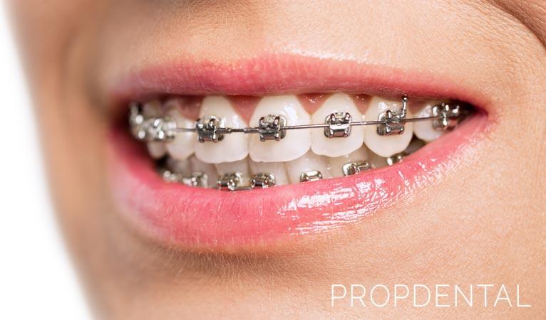 ¿Se puede llevar ortodoncia si tienes implantes dentales?