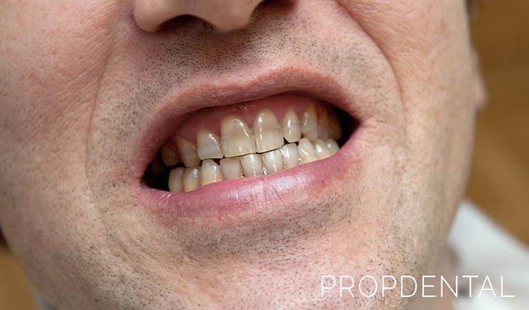 Tipos de manchas dentales (y cómo eliminarlas)