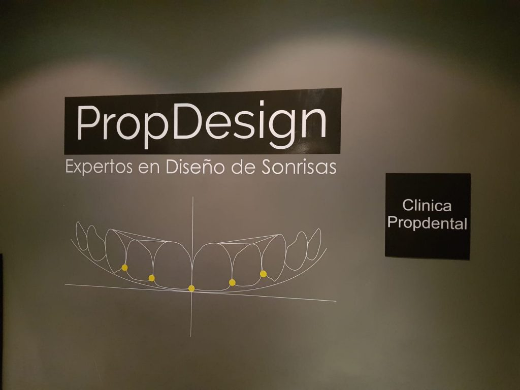 implantes carga inmediata madrid