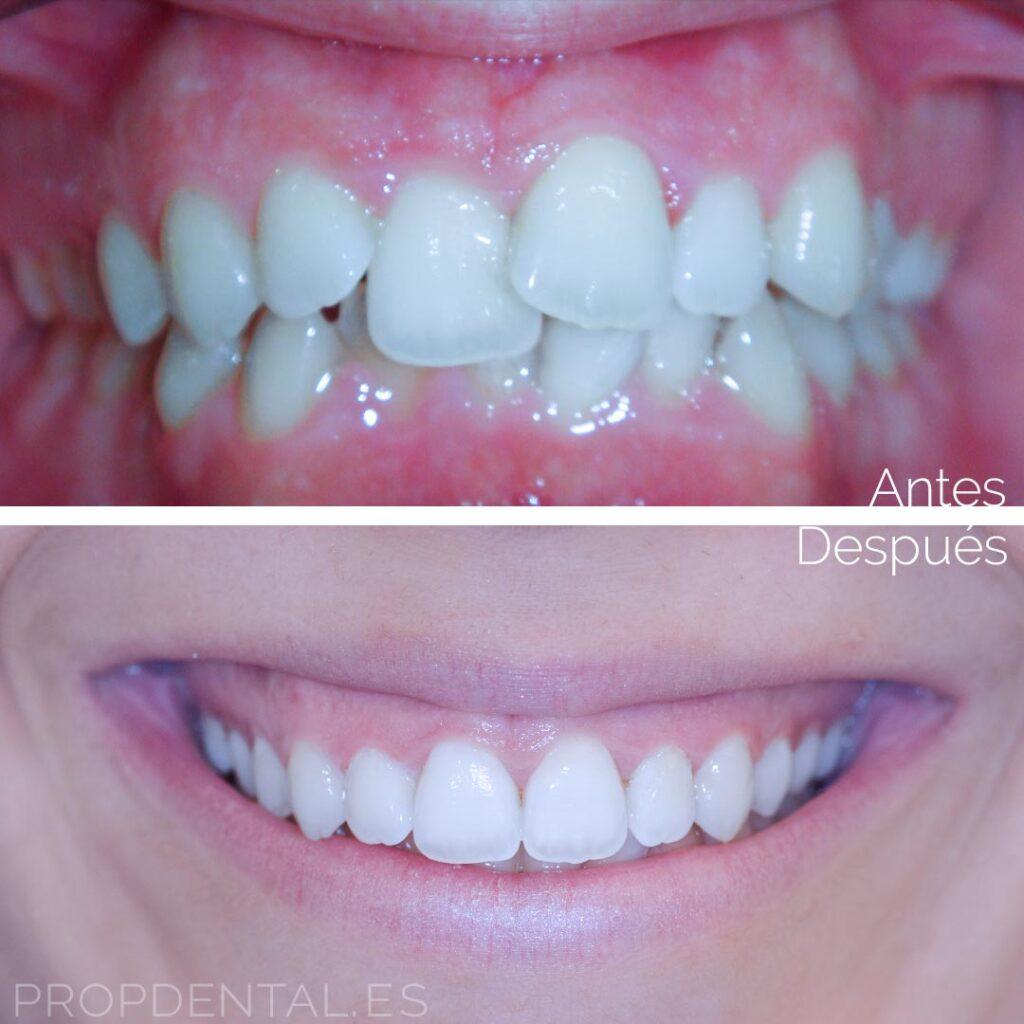 ortodoncia estética antes después