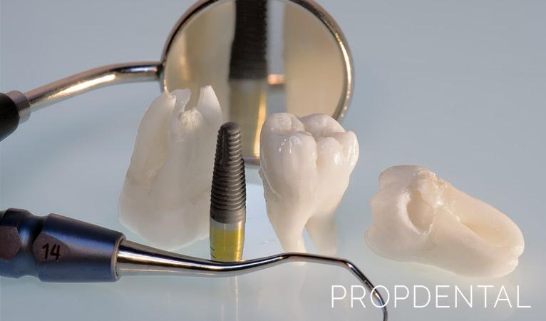 ¿Por qué cada vez más pacientes optan por los implantes dentales?