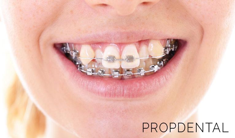 Recupera la sonrisa con una Ortodoncia