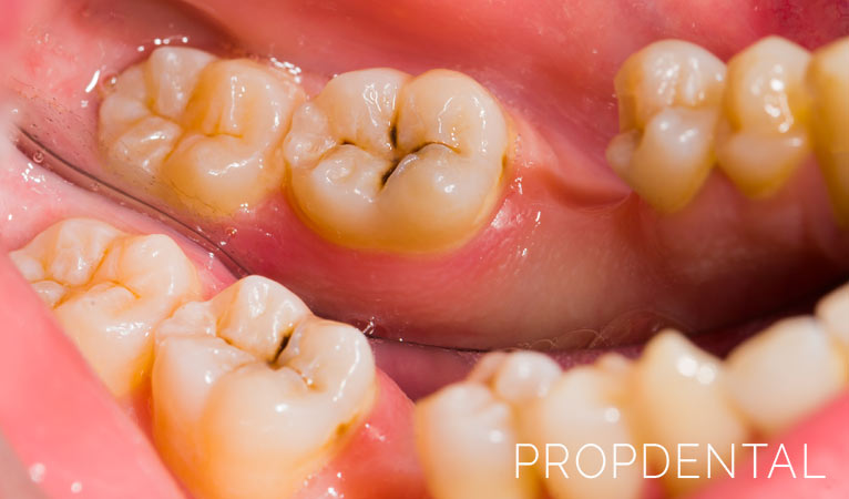 Solucionar la caries: ¿Necesito un empaste dental?