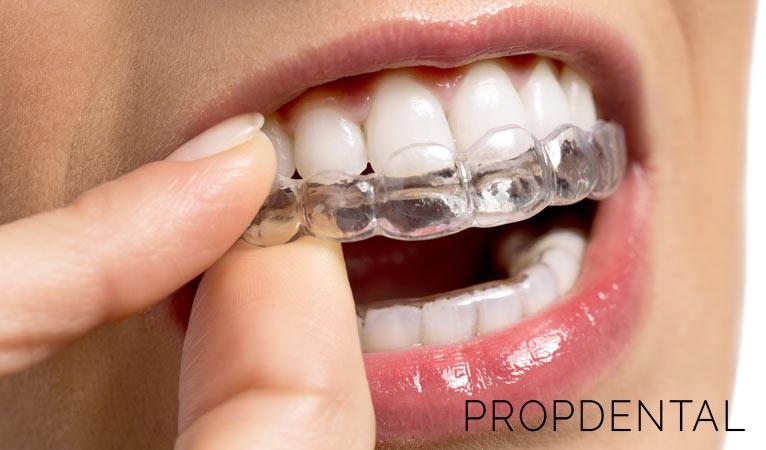 Todo sobre la ortodoncia removible