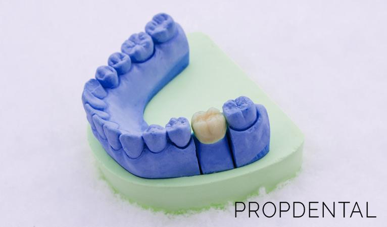 Todo sobre las coronas dentales