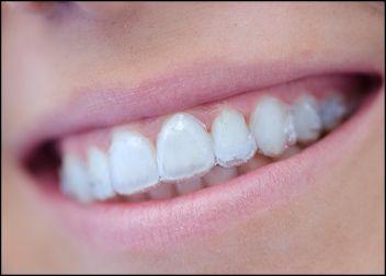 tratamientos ortodoncia estética