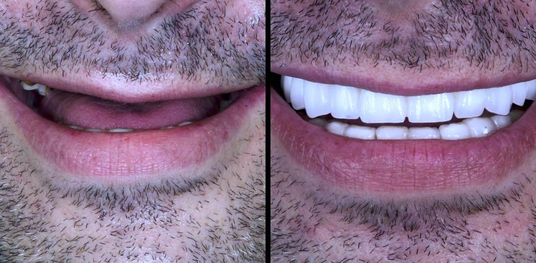 Caso prótesis de circonio sobre implantes dentales