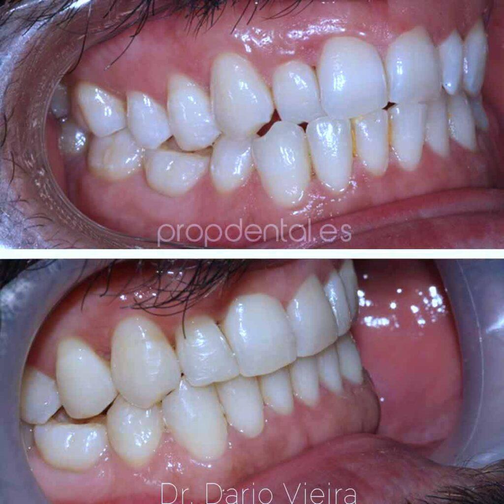 agenesia diente 45
