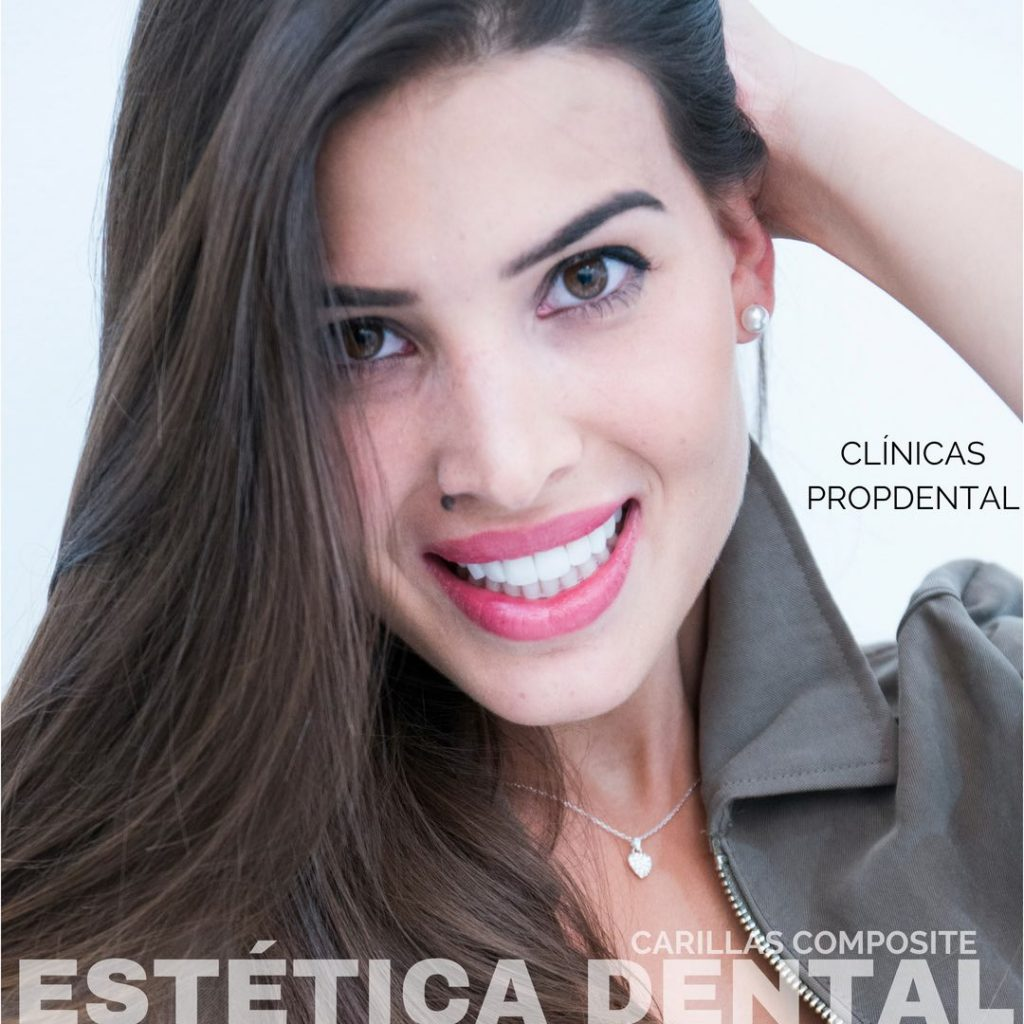 carillas composite estética dental