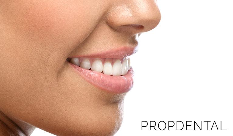 Carillas dentales, ¡Un gran cambio para tu sonrisa!