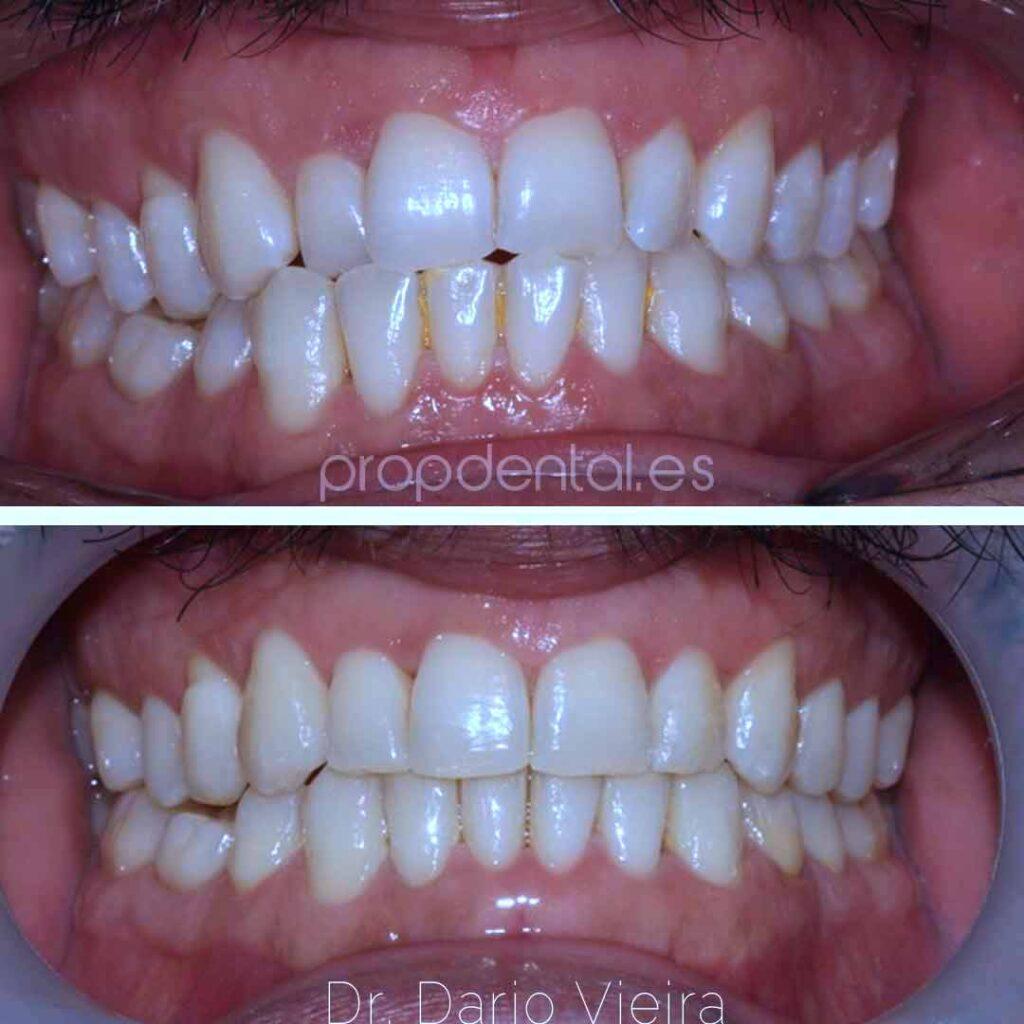 caso ortodoncia mejorar resalte