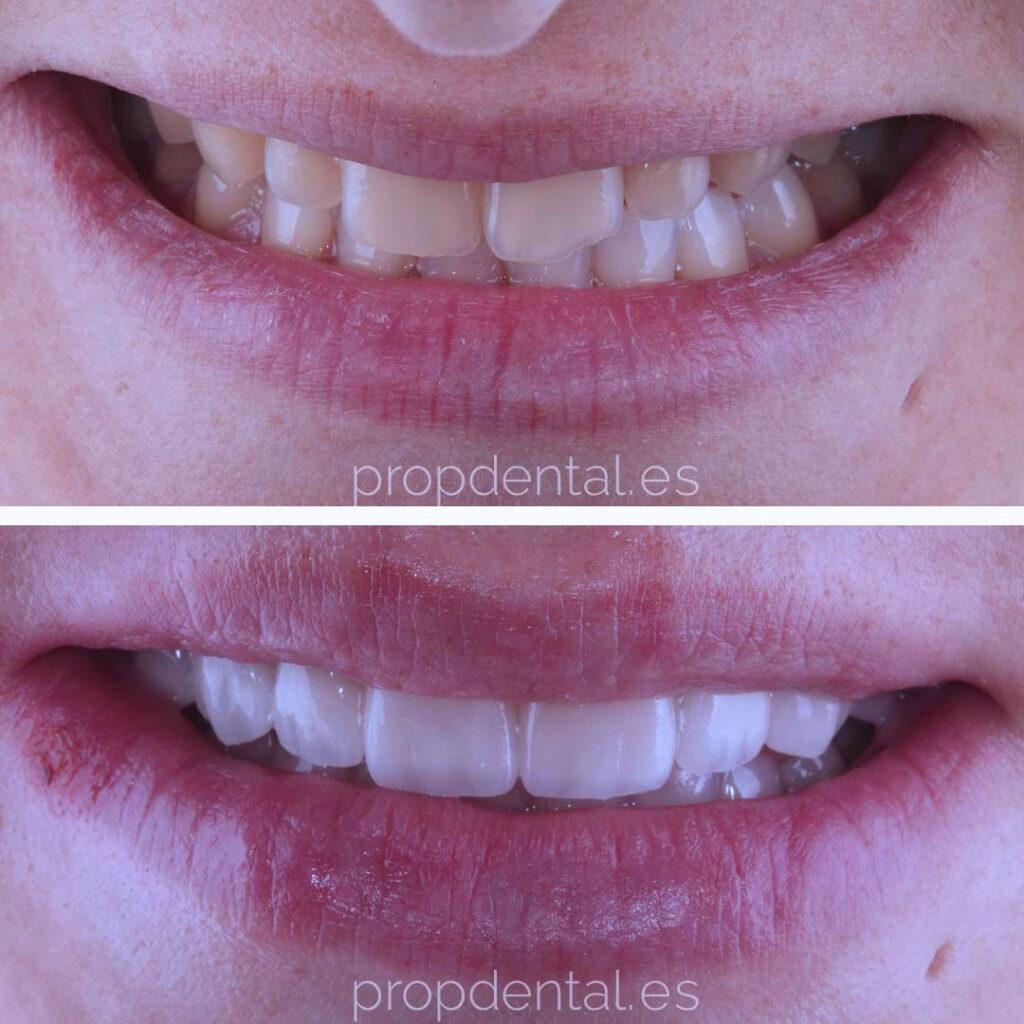 casos clínicos de estética dental
