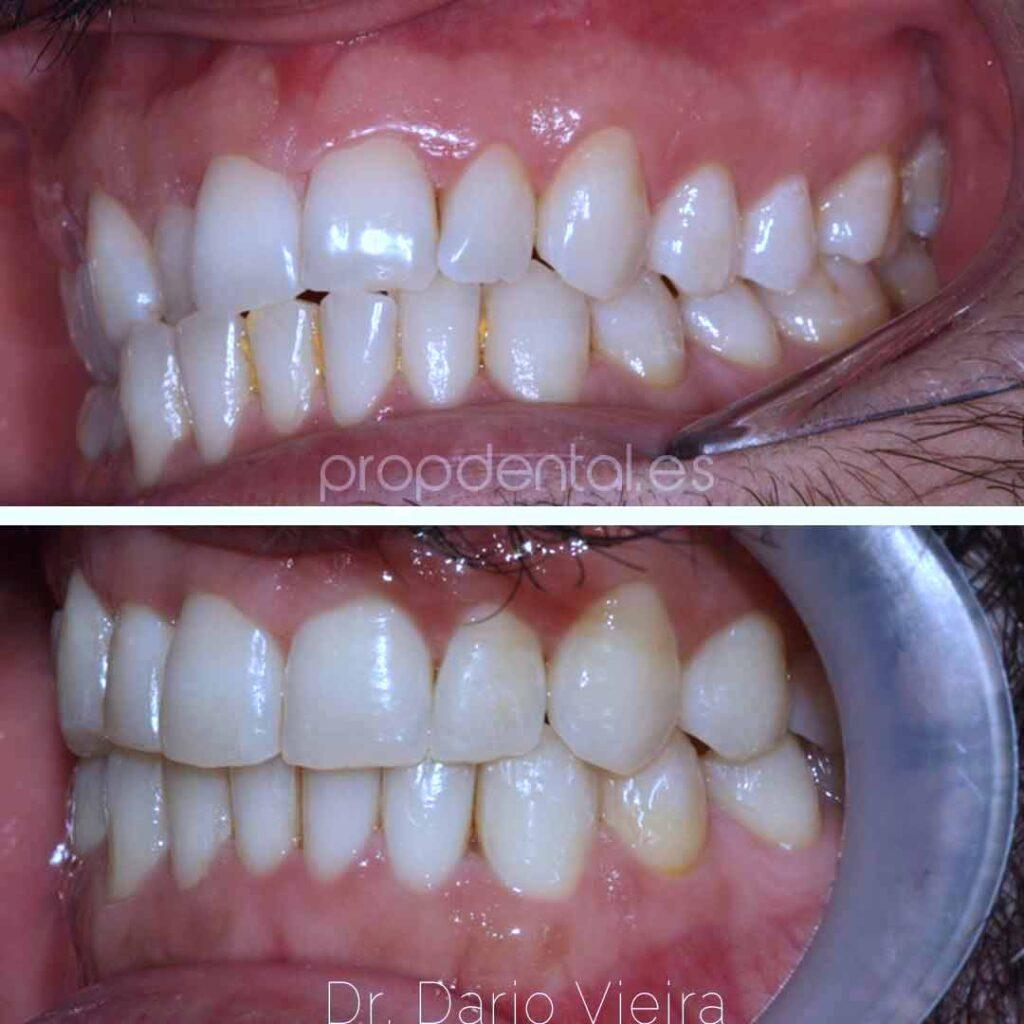 colisión cruzada diente 12