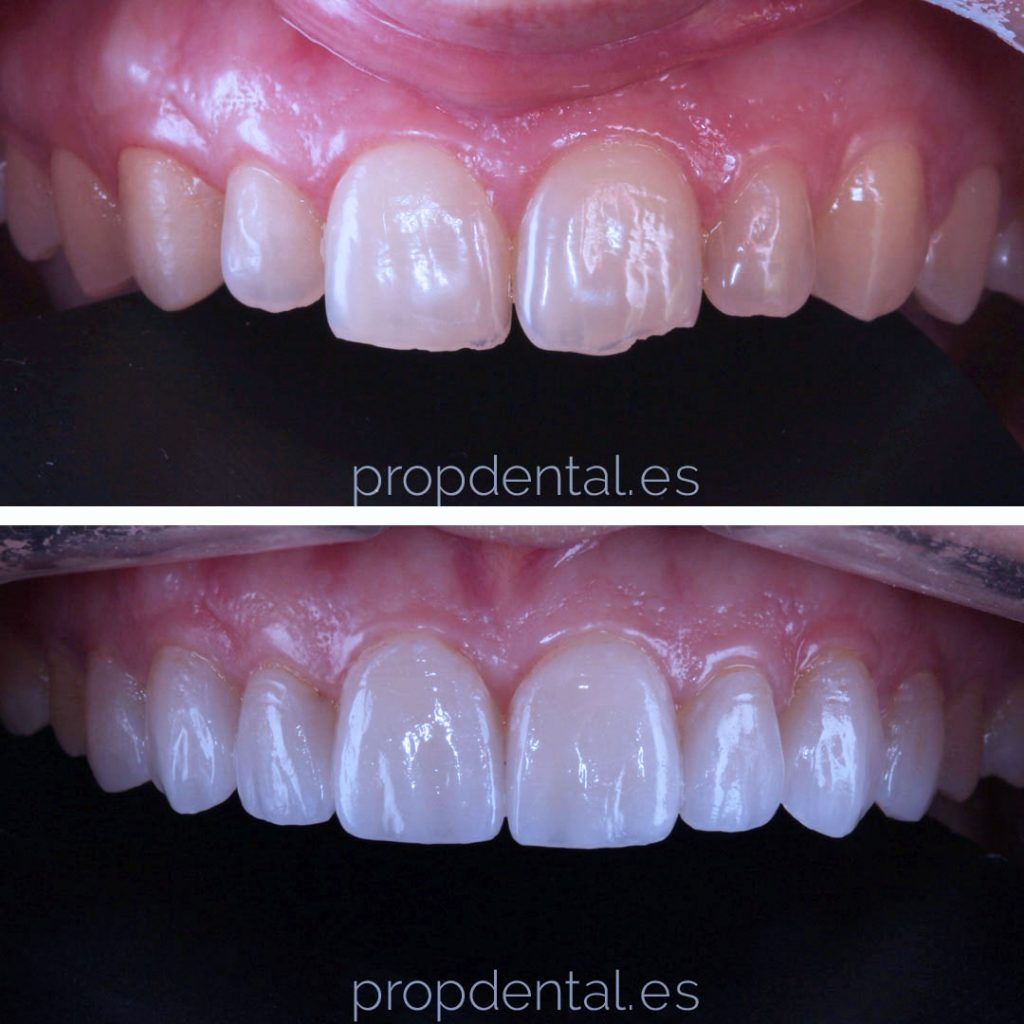 dentistas especialistas estetica dental barcelona