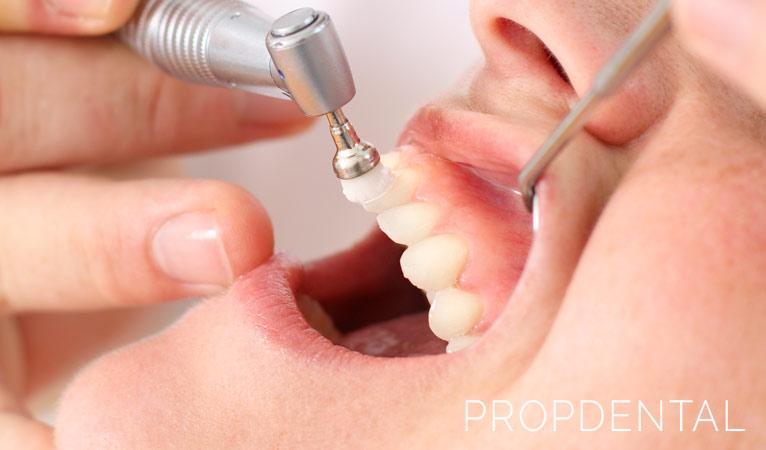 ¿En qué consiste una profilaxis oral y cuándo la necesito?