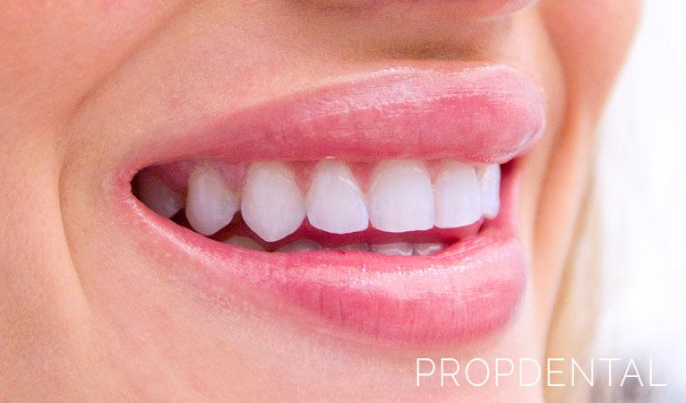 Estética Dental: recupera una sonrisa bonita en PropDental