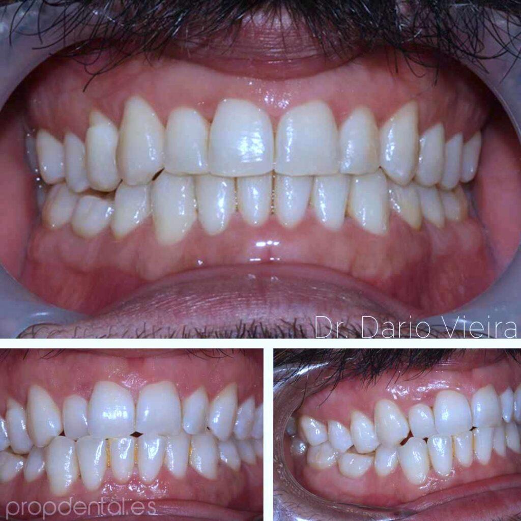 ortodoncia expansión arcadas
