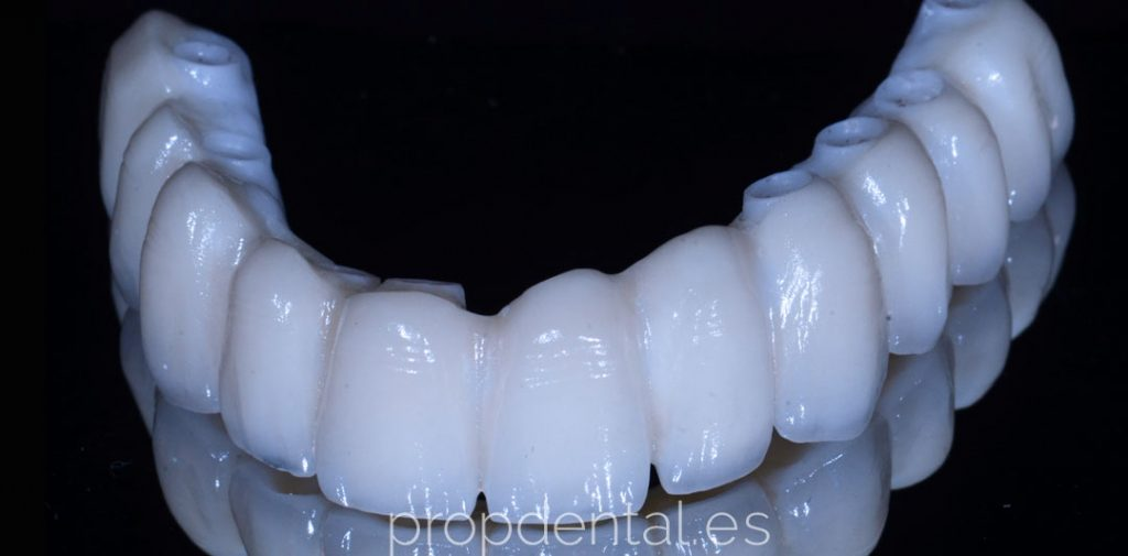 prótesis de circonio sobre implantes