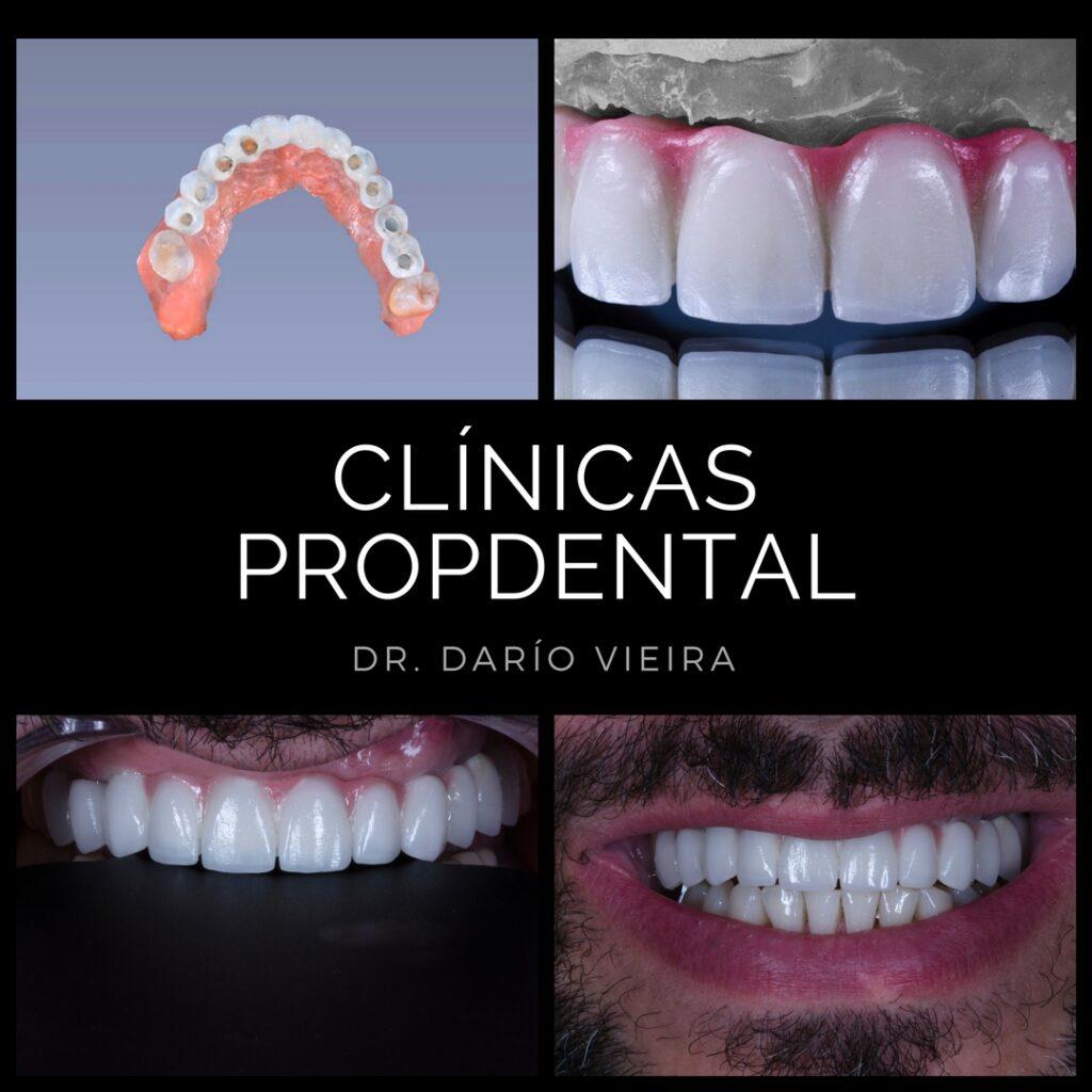 protesis sobre implantes madrid y barcelona