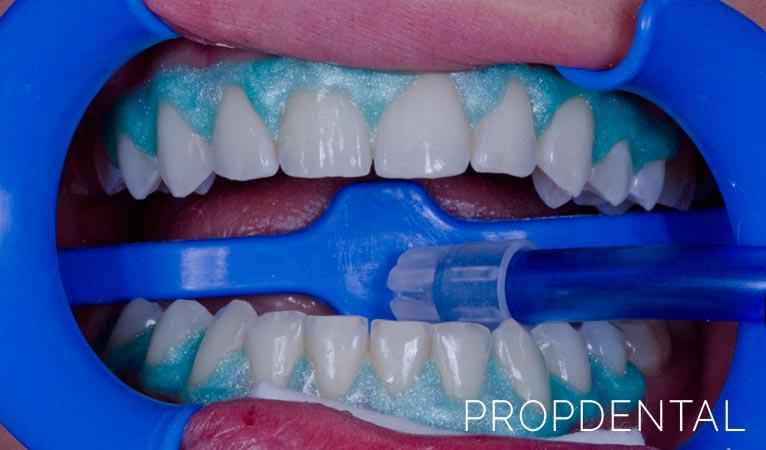 Blanqueamiento dental: prepara tu sonrisa para el verano