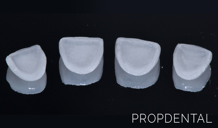 Carillas dentales: preguntas frecuentes