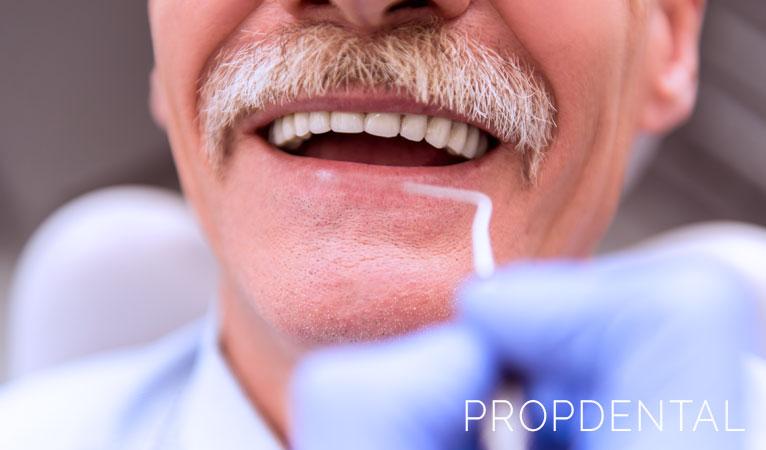 Cuidados tras la colocación de un implante dental