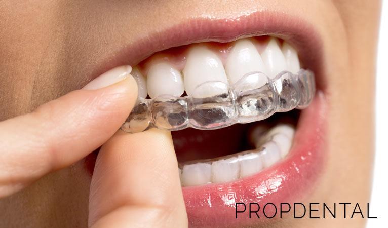Ortodoncia invisible: ¿Qué ventajas tiene?