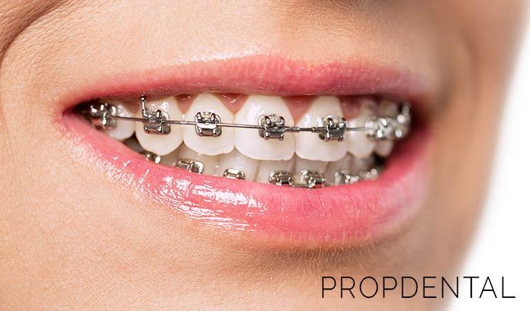 Ortodoncia: más allá de una sonrisa bonita