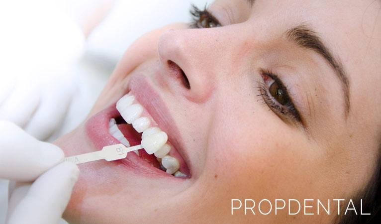 Tips para alargar los resultados de tu blanqueamiento dental