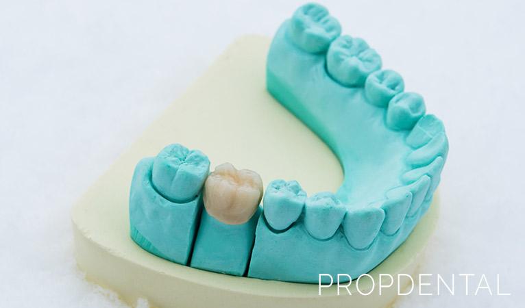 Carilla vs. corona dental: ¿Qué diferencia hay?